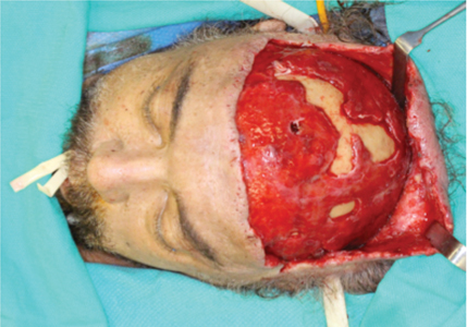 Intraoperative photo demonstrating variable areas of necrosis of the pericranium, galea aponeurotica and subcutaneous connective tissue. The unfavourable incision to access to the vertex of the skull was performed at an outside hospital centre prior to transferring the patient to our care.