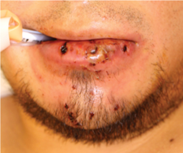 Intra-operative photo demonstrating preoperative appearance of lower lip.