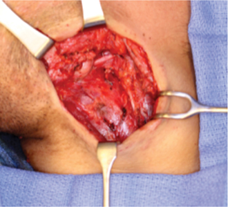 Intraoperative photo revealing left neck defect from thrombectomy