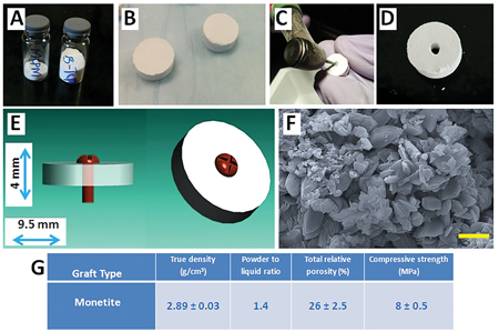 (A) ß-Tricalcium phosphate (ß-TCP) and Monoclacium phosphate monohydrate (MCPM) powders for fabricating disc grafts, (B) Fabricated monetite grafts, (C) Screw-hole being drilled in the monetite graft, (D) Fabricated monetite graft with screw hole, (E) Schematic representation of graft disc geometry and dimensions, (F) SEM images obtained from the monetite graft surface (Scale bar in the images represent 2 μm), and (G) Table showing characterization of fabricated disc grafts. Values are presented as mean ± standard deviation (n=10).