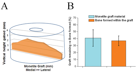 (A) Mapping of average bone height augmented with monetite onlay grafts, and (B) The percentage of graft material remaining and the bone tissue formed within the graft area after 12 weeks of implantation.