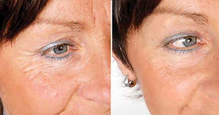 Generalised improvement in skin health and quality following several treatments using red LED therapy and a visible reduction in lines and wrinkles.
