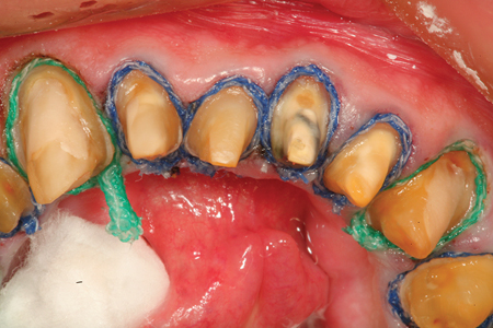 An occlusal view of a multiple unit prepared mandibular arch case after placement of the second retraction cords (#1 and # 2 UltraPak: Ultradent Products).