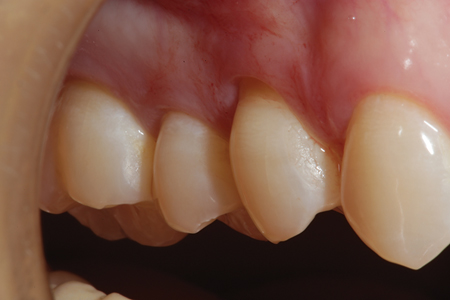 Tooth # 15 has an abfraction lesion on the facial surface to be restored. Since there is adequate keratinized free gingiva present, a diode laser can be used to make the gingival margin of the restored area supragingival facilitating placement of the restorative material.