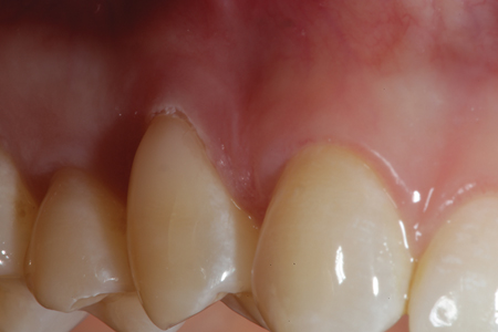 The completed Class V composite restoration on the facial surface of tooth #15. Note the seamless blend of the restorative material and also the minimal tissue necrosis as a result of the Gemini super pulsed laser.