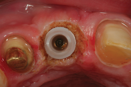 An occlusal view of the tissue sculpting done around the custom abutment on the implant in the #12 position. Using a provisional restoration will now help to create natural tissue contours around the implant abutment which will improve the aesthetics of the definitive restoration.
