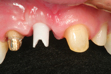 The provisional restoration has been removed to show how the gingival tissues have matured around the implant custom abutment simulating natural emergence profile.