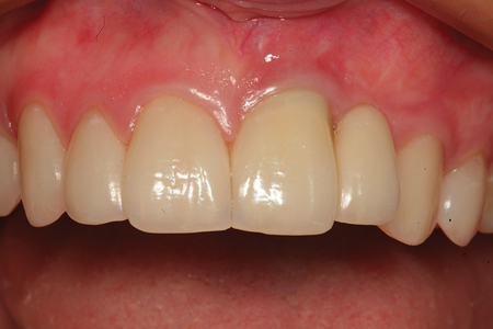 The definitive ceramic restorations are shown for the case in Figure 17 from the facial aspect.
