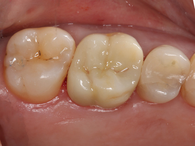 Highly polished occlusal surface.
