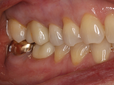 Stained and glazed vestibular surface. Monolithic translucent zirconia – strong esthetic result.
