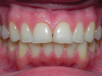 Pre-operative – incisal breakdown.