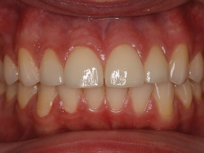 Lithium Disilicate crowns veneered with feldspathic ceramic, bonded – moderate strength, highly esthetic.