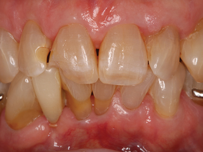 Pre-operative condition, endodontically treated, highly discolored.