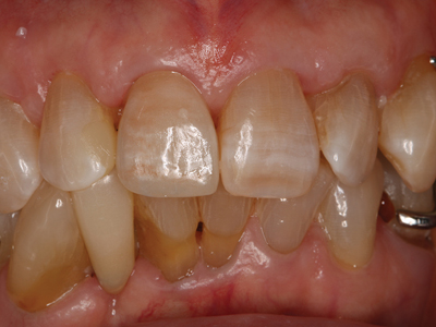 Cementation day–final result.