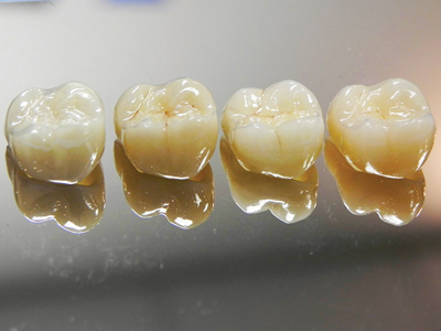 Four crowns for the same case – all with slightly different characteristics. Left to Right: monolithic, highly polished zirconia/monolithic, highly polished zirconia, stained and glazed/monolithic highly polished translucent zirconia, stained and glazed/monolithic lithium disilicate CAD stained and glazed.
