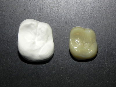 Milled raw zirconia (larger) beside color infiltrated, sintered zirconia (shrunken).