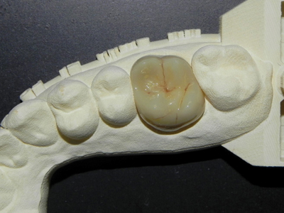 Completed monolithic zirconia restoration after stain, glaze and high polish.