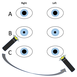A, Equally round, dilated pupils. B, Ipsilateral pupillary constriction and consensual response when penlight is shone into right pupil. C, Relative afferent pupillary defect indicated by lack of ipsilateral pupillary constriction and consensual response when penlight is shone into left pupil.
