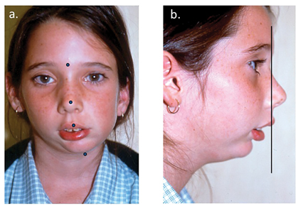 (A) Frontal view of a patient suffering from left temporomandibular joint ankylosis. The dots indicate the severe facial asymmetry towards the left. (B) The profile view demonstrating the severe mandibular anteroposterior deficiency and convex profile.