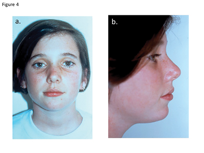 Case 1. The normal facial growth is evident in the postoperative (a) frontal view and (B) profile view.