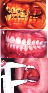 Case 1. (A) The pre surgical occlusion and maximum mouth opening, (B) the post treatment occlusion and, (C) the three-year post treatment mouth opening.