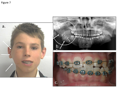 (A) The 15 year old patient received a costo-chondral graft three years previously for the correction of temporomandibular ankyloses. The graft re-ankylosed and has overgrown causing facial asymmetry and a malocclusion, (B) the enlarged bone graft (arrows and circle), (C) bilateral cross bites, midline deviation as well as maximum mouth opening.