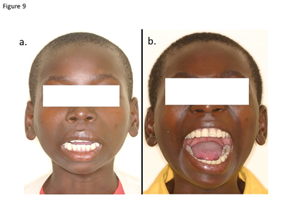 (A) The pre-surgical frontal view of a 14-year-old patient with left temporomandibular joint ankyloses. Mouth opening 4 mm, (B) post treatment frontal view demonstrating the increased mouth opening of 39 mm one-year following treatment.