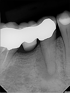 Pre-treatment image of lower first premolar.