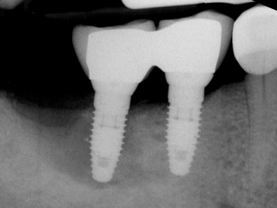 Failed implant with extensive circumferential bone loss.