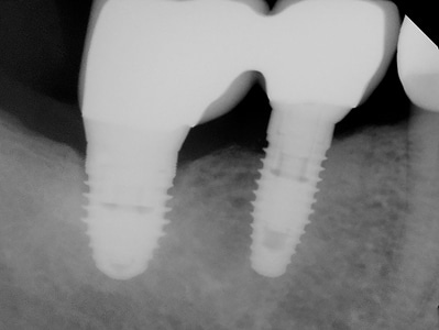 "10 years post ""delayed"" implant replacement protocol."
