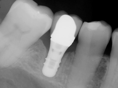 """Late failure"" of an un-splinted 6 mm length implant."