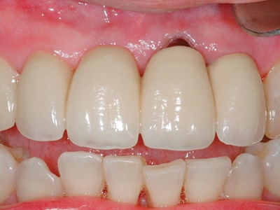 Clinical view of successful implant (2.1 and 2.2) to tooth (1.3) rigid splint (20 years duration).