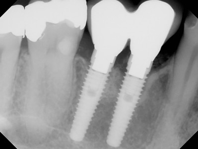 Implants positioned with insufficient mesio-distal space.