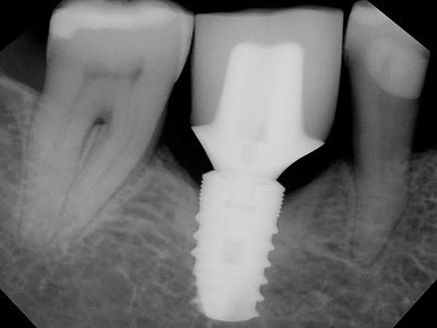 "Radiograph: The 6mm diameter implant that replaced the fractured 4.7mm diameter implant ""immediately""."