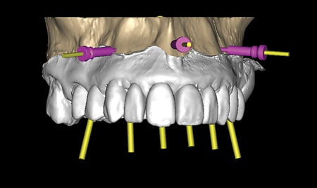 Computerized implant treatment planning. Anchor pins located in the pre-molars and mid maxilla.