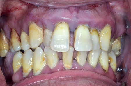 Pre-op intra-oral photograph, malocclusion, diastemas, cross-bite and acute periodontitis.