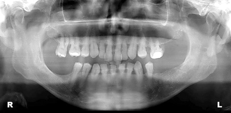 Pre-op panoramic X-ray. Generalized bone loss at the maxilla, overeruption of the molars and bilateral sinus pneumatisation.