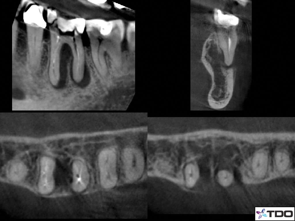 CBCT slices showing a J-shaped finding on the mesial root and a smaller apical finding on the distal root.