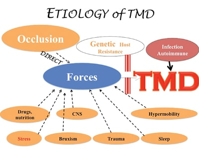Etiology of TMD