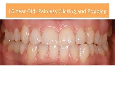 Occlusion for Case 1: 16-year-old with painless clicking and popping. Notice no wear on teeth.