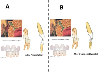 Inflamed Joint – These are comparative views of the determinants of joint inflammation.