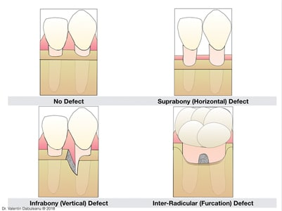 Classification of periodontal defects.