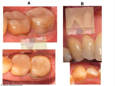 Surgical technique – incision.
