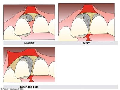 Surgical technique – flap design.