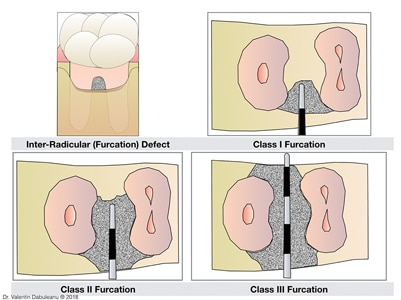 Furcation defects.