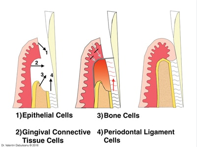 Guided tissue regeneration (GTR) principle.