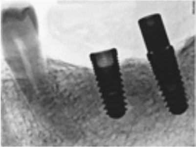 Damaged Prosthetic Screws