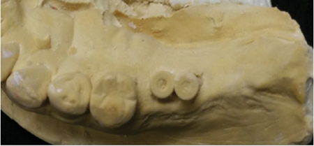 2 dental implants too close to each other and not prosthetically placed for ideal final implant prosthesis.