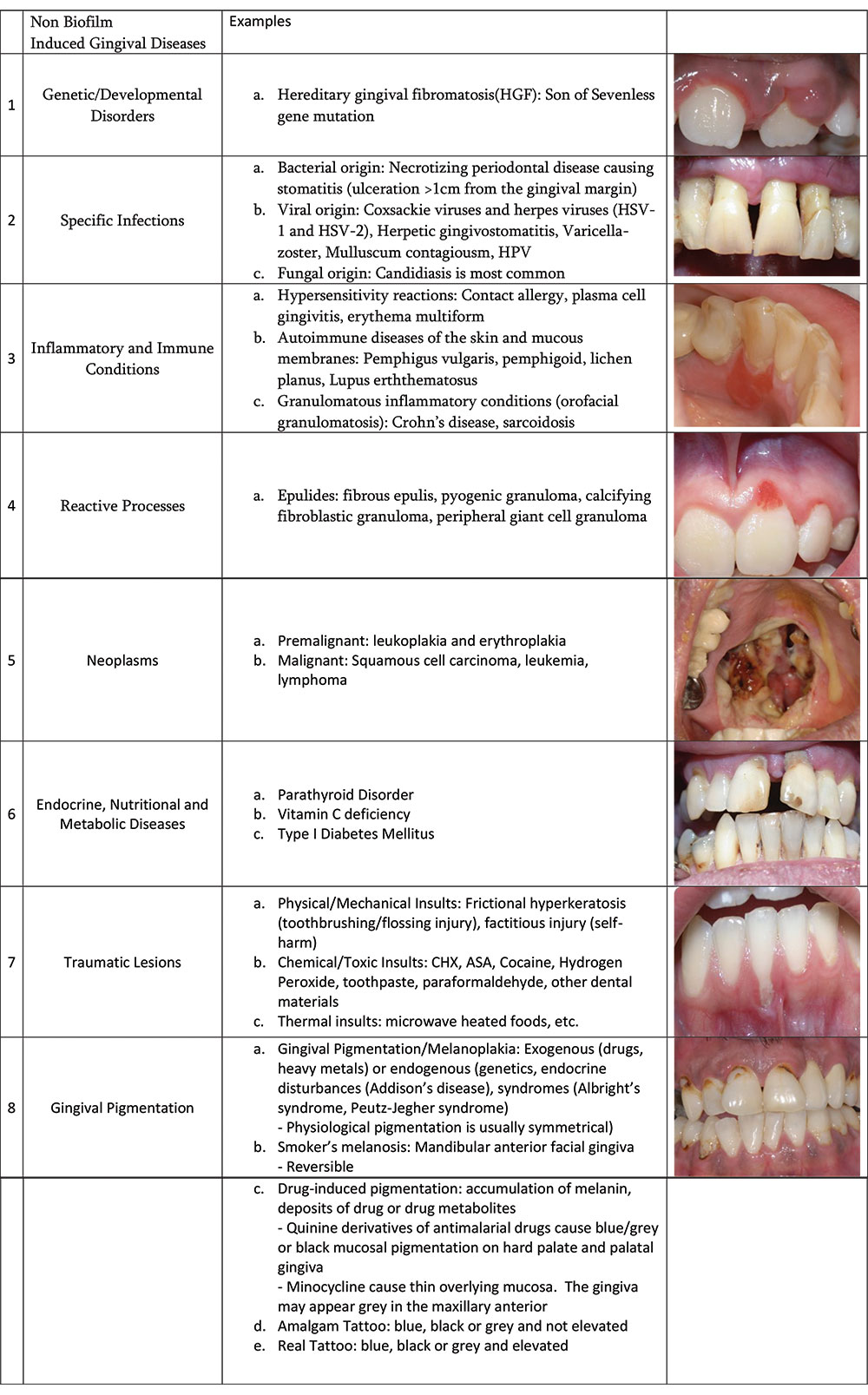 The New Global Classification System for Periodontal and Peri-Implant Diseases