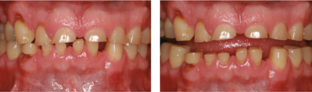 Severe Bruxism without loss of OVD: Severely worn anterior teeth with intricately matched contacting surfaces and almost no posterior tooth wear.